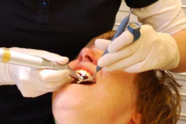 Zubařské ošetření