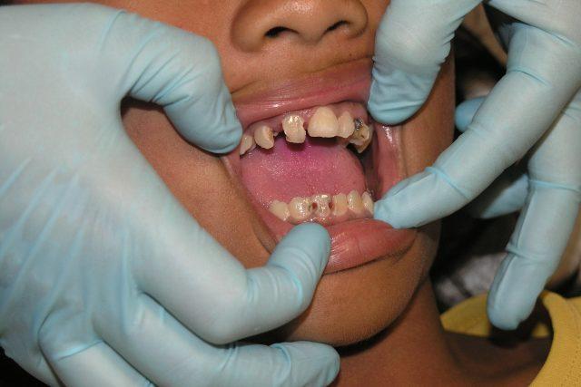u zubaře, zuby, zubní kaz, parodontóza, stomatologie, zubař